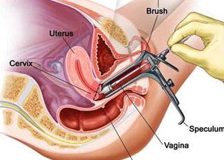 阴茎短小,阴茎延长术,赤峰新协和男科